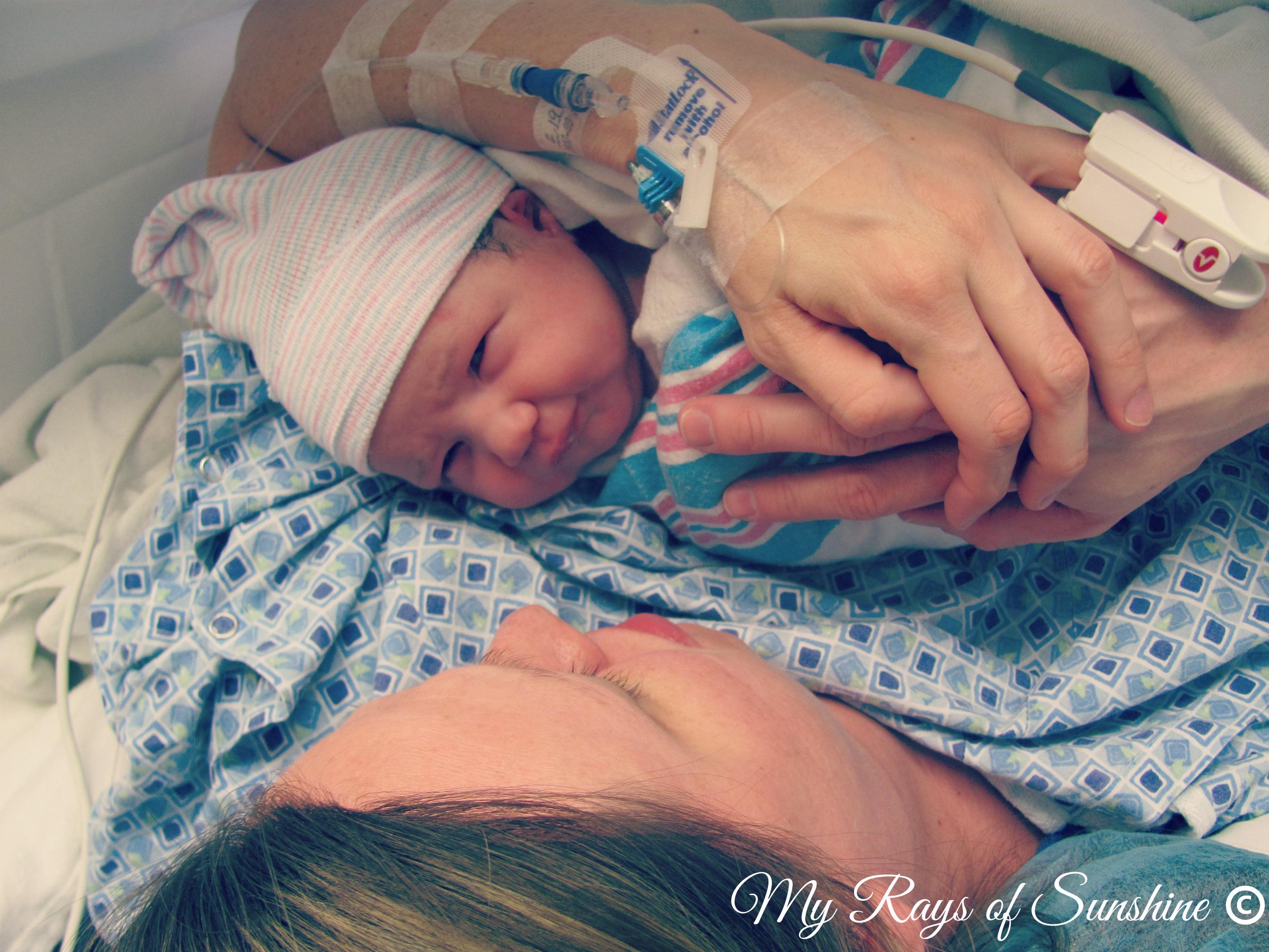 My Beautiful Single Umbilical Artery Baby